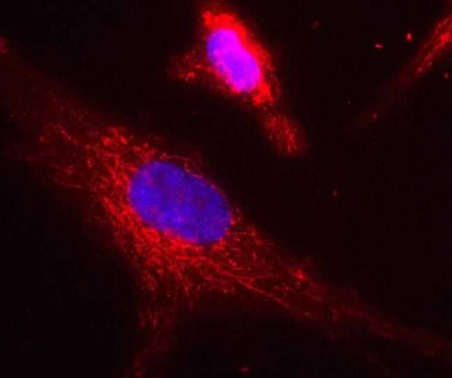 ACADVL Antibody (A21980) in Immunofluorescence