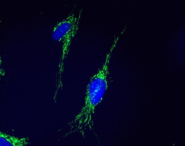 DECR1 Antibody (A21982) in Immunofluorescence