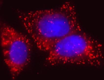 ECHD Antibody (A21989)