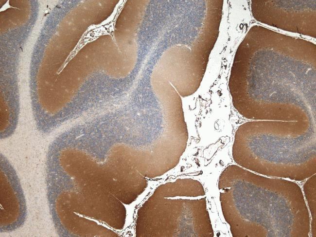 SOD2 Antibody (A21990)