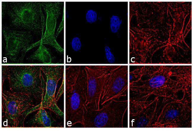 Rat IgG (H+L) Highly Cross-Adsorbed Secondary Antibody (A24544) in Immunofluorescence