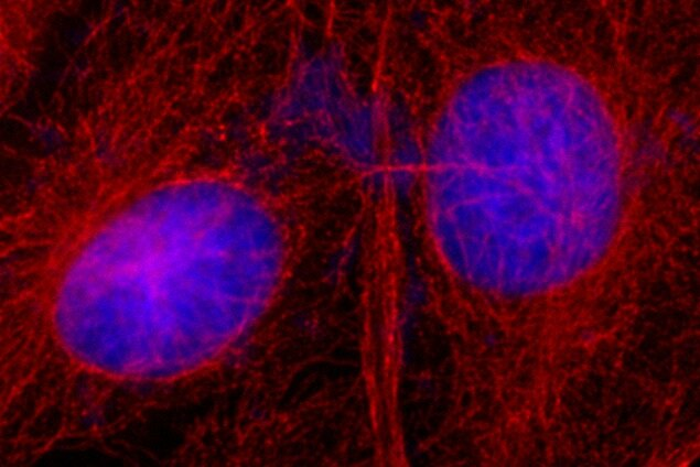 Mouse IgG (H+L) Secondary Antibody (A27027) in Immunofluorescence