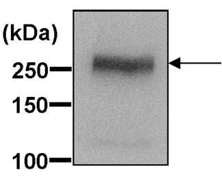 ABCA1 Antibody (PA1-16789) in Western Blot