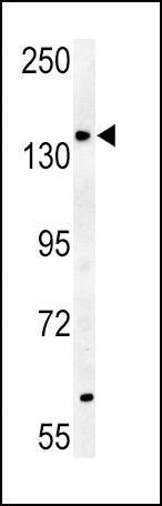 ABCB4 Antibody (PA5-13106)