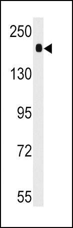 ACE Antibody (PA5-14902) in Western Blot