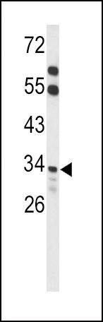 ACOT8 Antibody (PA5-26152) in Western Blot
