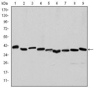 Smooth Muscle Actin Antibody (MA5-15871) in Western Blot