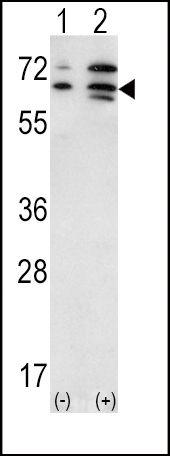 ACVR2A Antibody (PA5-13886) in Western Blot