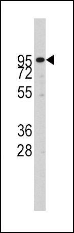ADAM17 Antibody (PA5-11572) in Western Blot