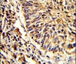 ADAM9 Antibody (PA5-25959) in Immunohistochemistry