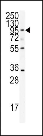 ADAMTS13 Antibody (PA5-14339) in Western Blot