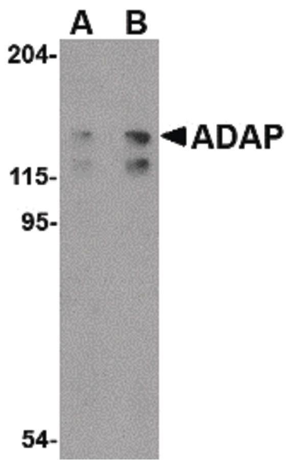 ADAP Antibody (PA5-20400) in Western Blot