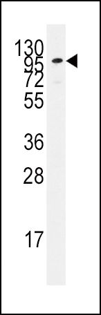 ADCY2 Antibody (PA5-12328) in Western Blot