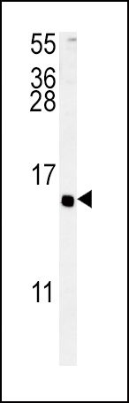 PACAP Antibody (PA5-25575)
