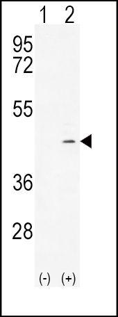 ADH4 Antibody (PA5-23637) in Western Blot