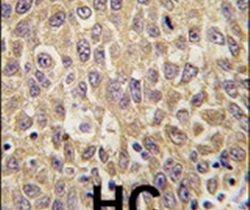 AFP Antibody (PA5-11480) in Immunohistochemistry