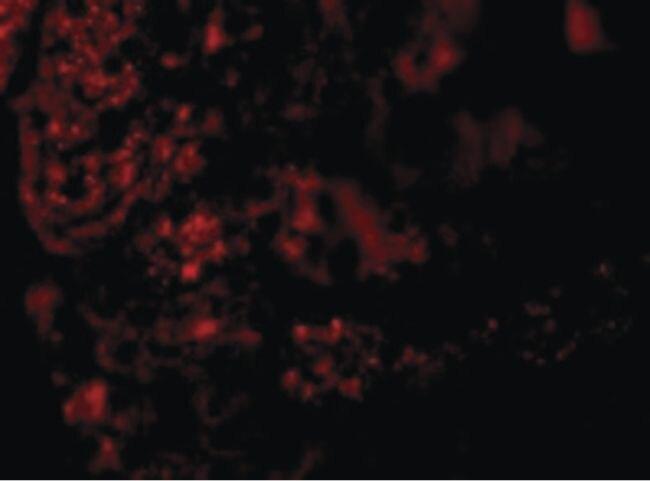 AGTR1 Antibody (PA5-20812)