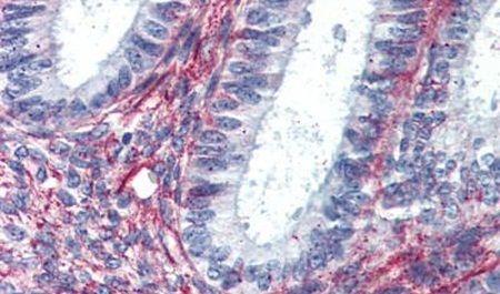 AGTR2 Antibody (PA5-33341) in Immunohistochemistry (Paraffin)