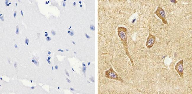 Tau (Cleaved Asp421, Asp422) Antibody (AHB0061) in Immunohistochemistry (Paraffin)