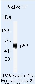 p53 Antibody (AHO0152) in Immunoprecipitation