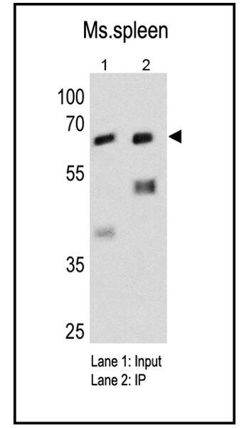 Fyn Antibody (AHO0482) in Immunoprecipitation
