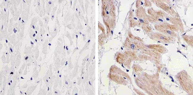 PRAS40 Antibody (AHO1031) in Immunohistochemistry (Paraffin)