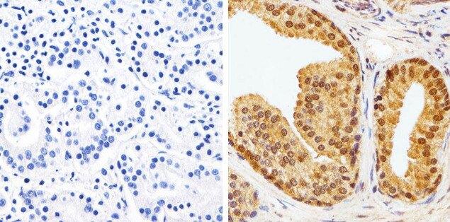 AKT1 Antibody (AHO1112) in Immunohistochemistry (Paraffin)