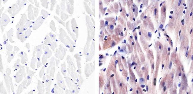 p38 MAPK alpha Antibody (AHO1202) in Immunohistochemistry (Paraffin)