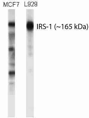 IRS1 Antibody (AHO1222)