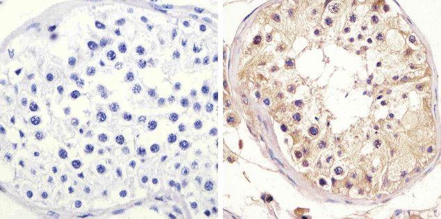 mTOR Antibody (AHO1232) in Immunohistochemistry (Paraffin)