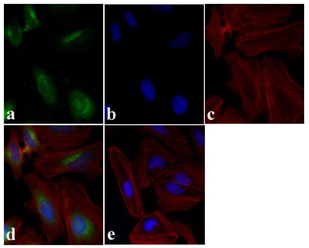 mTOR Antibody (AHO1232)
