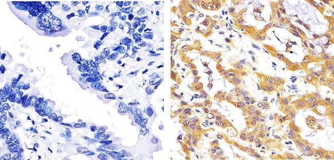 JNK1/JNK2 Antibody (AHO1362) in Immunohistochemistry (Paraffin)