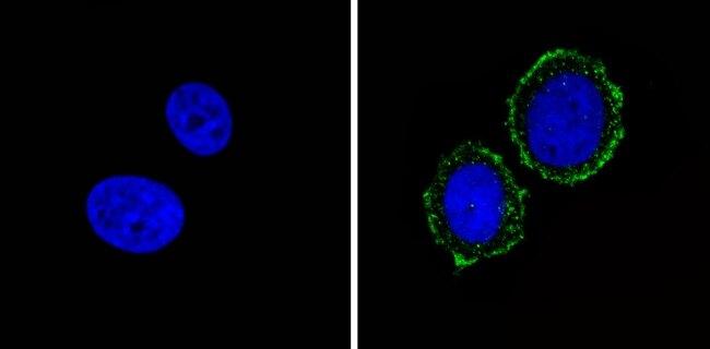INSR alpha Antibody (AHR0231)