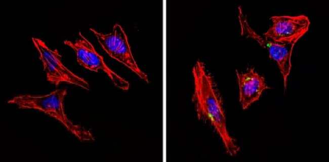 INSR beta Antibody (AHR0271) in Immunofluorescence