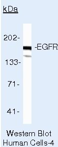 EGFR Antibody (AHR5062)