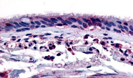 AHR Antibody (PA5-32664) in Immunohistochemistry (Paraffin)