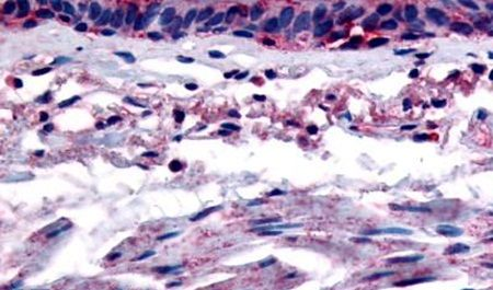 AHR Antibody (PA5-32665) in Immunohistochemistry (Paraffin)