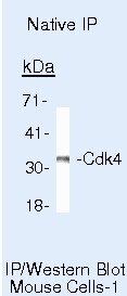 CDK4 Antibody (AHZ0202) in Immunoprecipitation