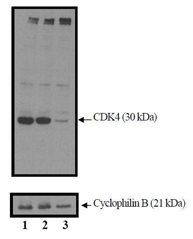 CDK4 Antibody (AHZ0202) in Western Blot