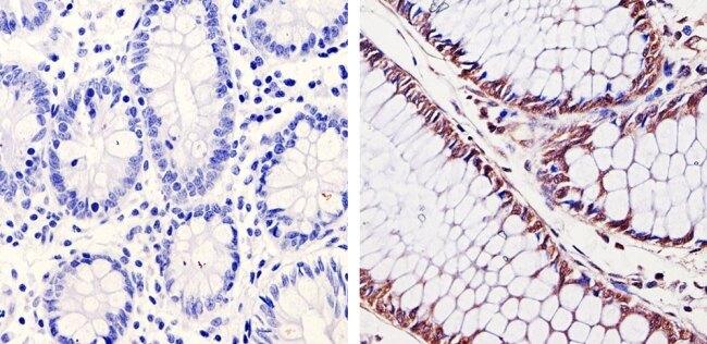 CDK6 Antibody (AHZ0232) in Immunohistochemistry (Paraffin)