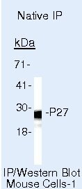 p27 Kip1 Antibody (AHZ0452) in Immunoprecipitation
