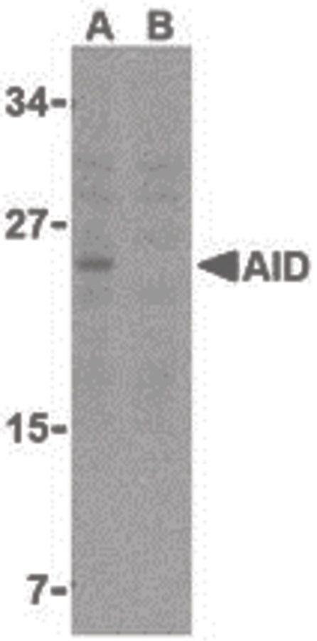 AID Antibody (PA5-20012) in Western Blot