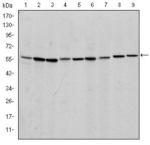 AIF Antibody (MA5-15880) in Western Blot