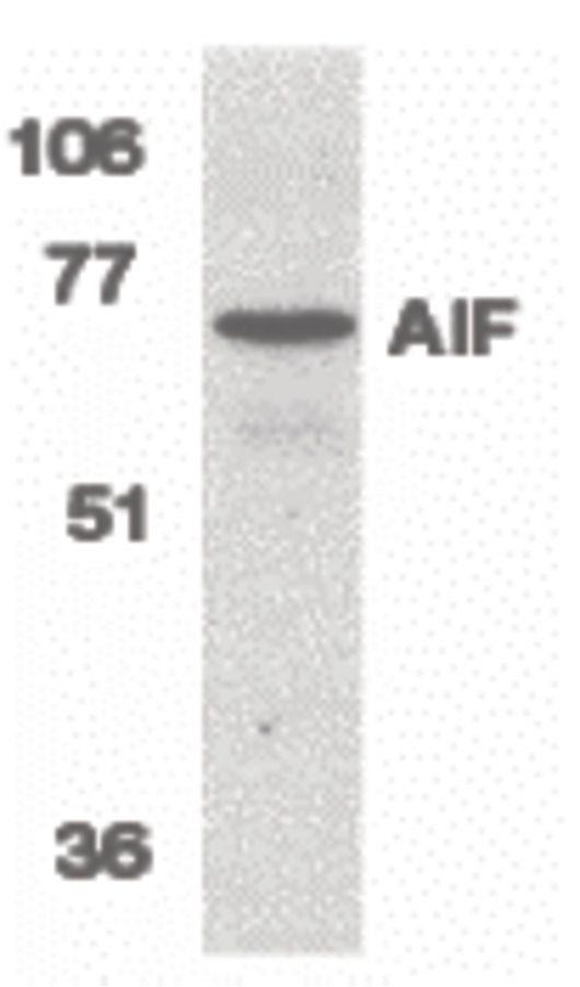 AIF Antibody (PA5-19947) in Western Blot