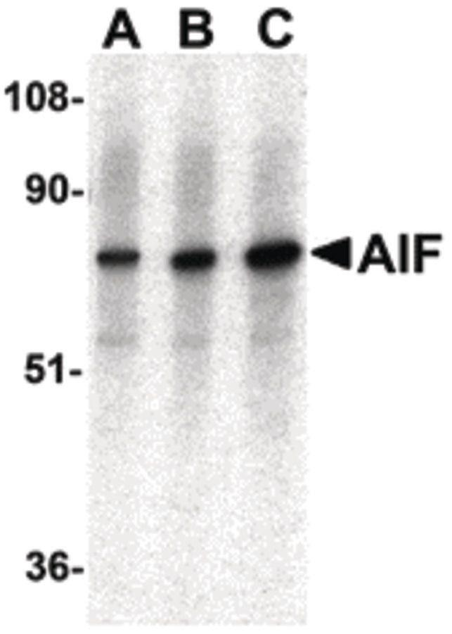 AIF Antibody (PA5-19960) in Western Blot