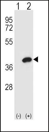 AKR1B1 Antibody (PA5-12316) in Western Blot