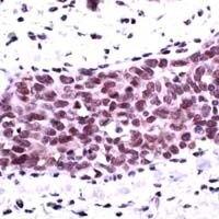 Phospho-AKT1 (Ser473) Antibody (PA1-37046)