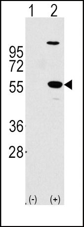 ALDH1A1 Antibody (PA5-11537) in Western Blot
