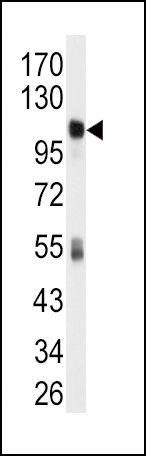 ALDH1L1 Antibody (PA5-15002) in Western Blot