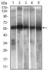 ALDH2 Antibody (MA5-17029) in Western Blot
